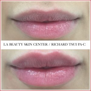 Non surgical lips improvements