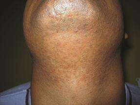 After Laser Hair Removal On The Neck