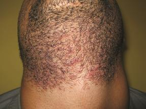 Before Laser Hair Removal on Neck
