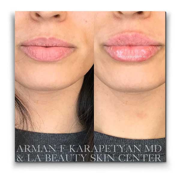 Lip Injections Glendale Ca