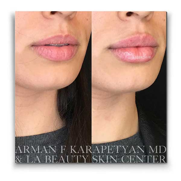 Lip Injections LA Beauty Skin Center Glendale