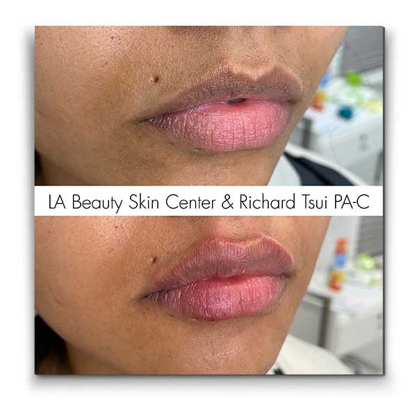 Lip Injections - Toluca Lake